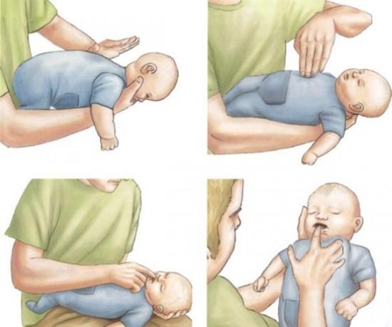 Первая помощь, когда ребенок подовился